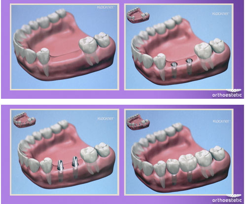Surgery and Implantology