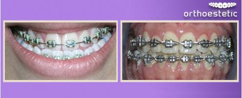 Pre surgery Orthodontics