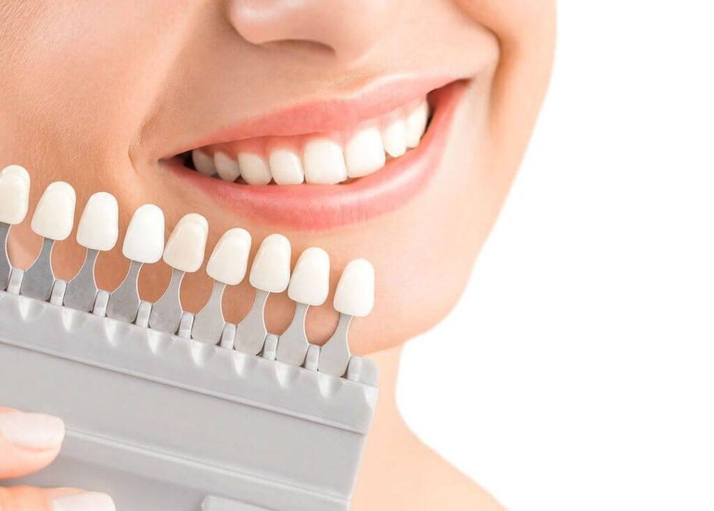 Carillas dentales, la revolución en la estética dental